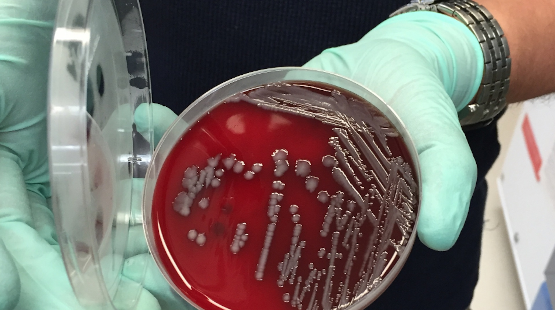 Updated: Superbug found in Illinois and South Carolina